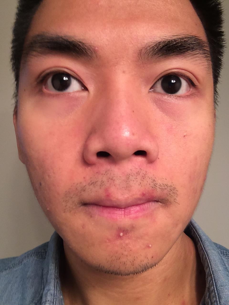 effect masturbation acne does